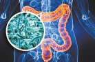 泻药可能增加患癌风险?建议不要长期过量服用