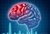 """40岁左右""""脑卒中""""患者日渐增加 不良生活习惯是主因"""