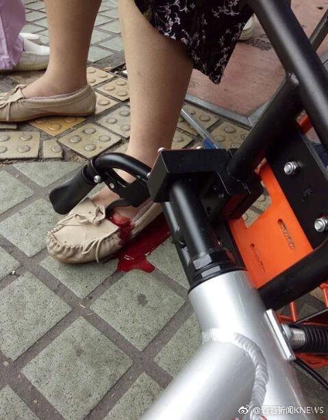 小孩打闹撞倒共享单车 过路孕妇脚背遭车柄刺穿