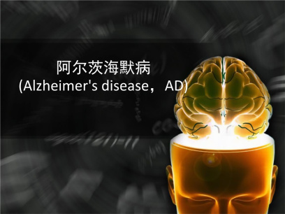 治疗阿尔茨海默症新药完成临床3期试验