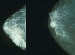 空氣污染傷及乳房?PM2.5容易導致乳腺癌