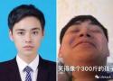 长胖20斤脸型变化