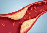 多摄入4类营养 血管变年轻