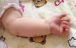 医生提醒,春季丘疹性荨麻疹多发 家长需多留意